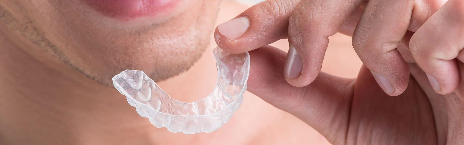 10 Things You Should Know About Invisalign