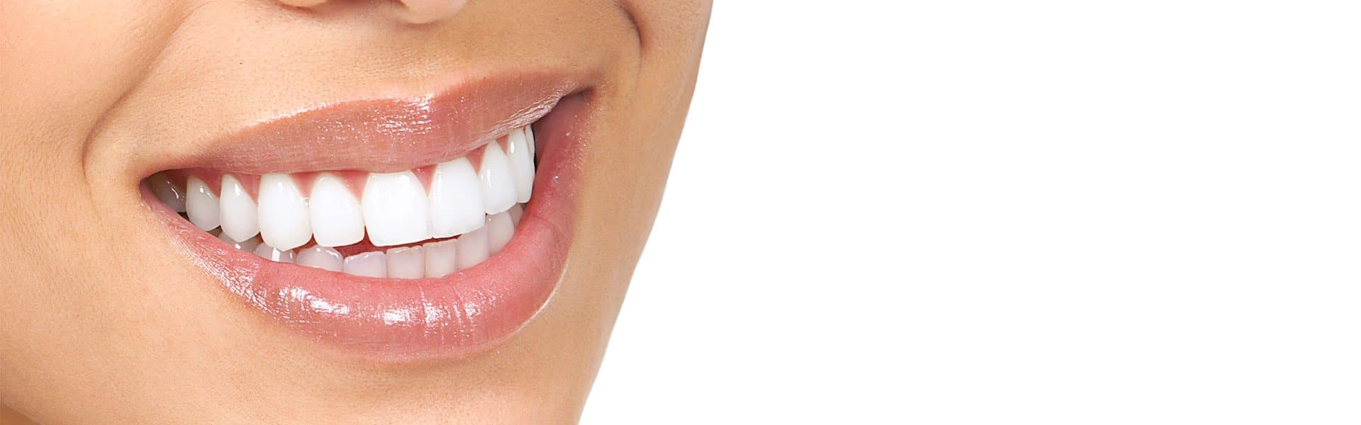 Taking the Mystery out of Teeth Whitening