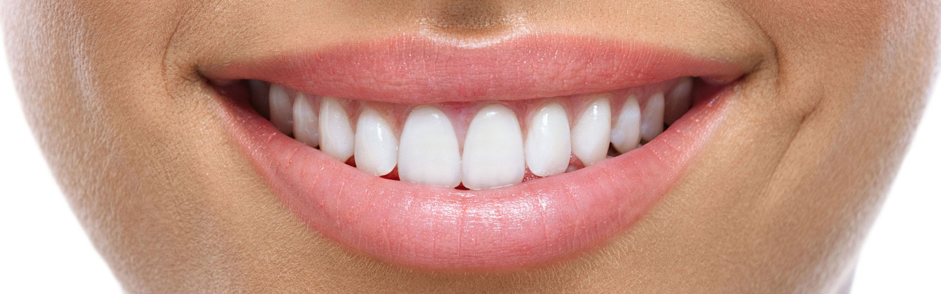 Snap-On Smile vs. Porcelain Veneers: Which to Choose?
